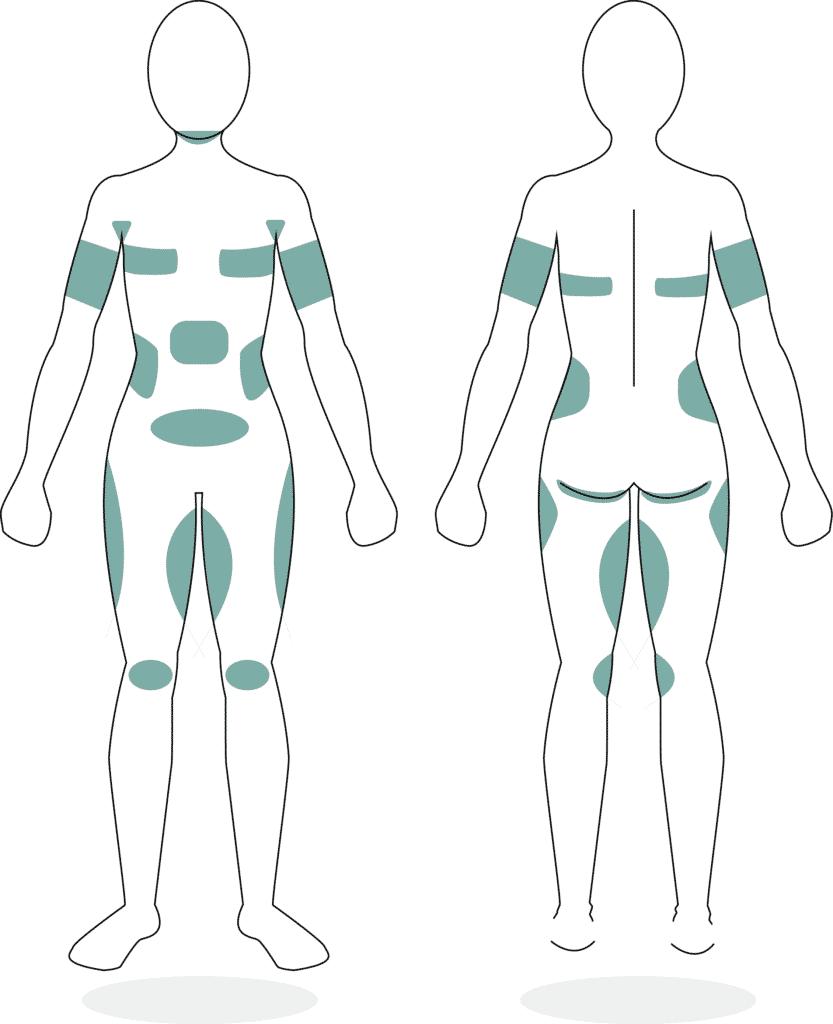 CoolSculpting Körperformung Fettreduktion